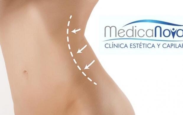 Aqualix liposucción sin cirugía