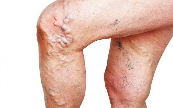 Elimina las varices por escleroterapia