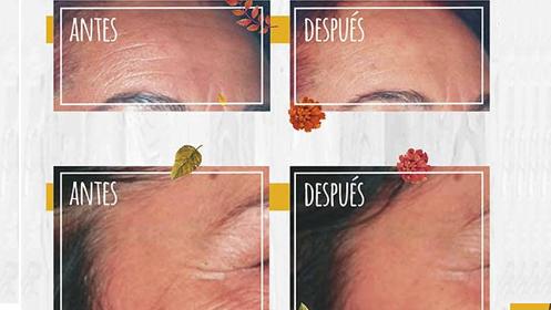 Sesión antiarrugas cara, cuello y escote de 40 minutos