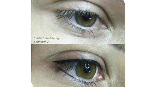 Micropigmentación de ojos en Dentalias