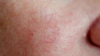 Sesión de eliminación de cuperosis facial por diatermocoagulación