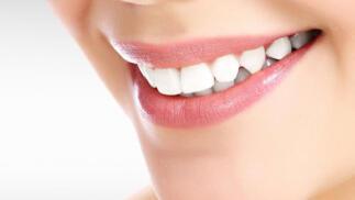 Limpieza dental completa