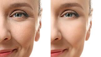 Dermapen facial con opción a presoterapia corporal o LPG facial