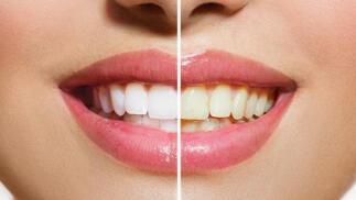 Limpieza o blanqueamiento dental