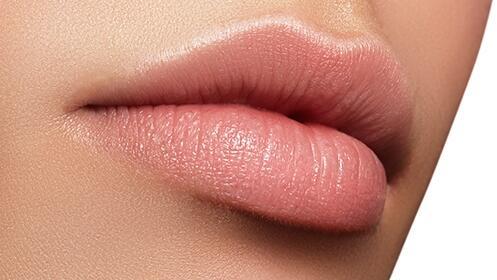 Aumento de labios con ácido hialurónico KYSSE por 299€