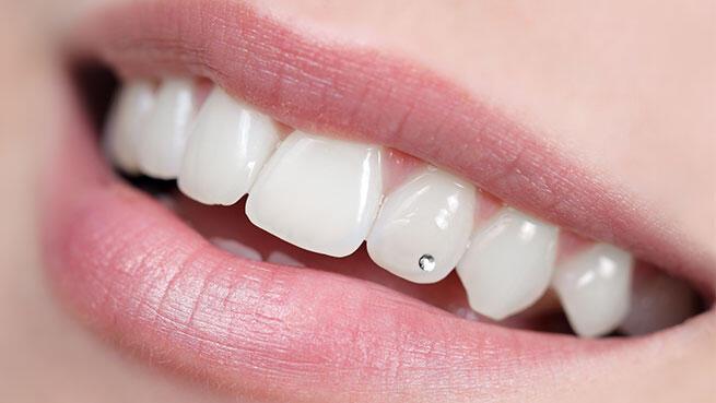 Colocación de Brillante Dental no invasivo con opción Higiene Bucodental con pulido