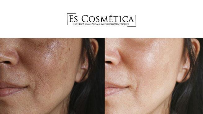 Cambia tu piel con Peeling Químico por 39.90€