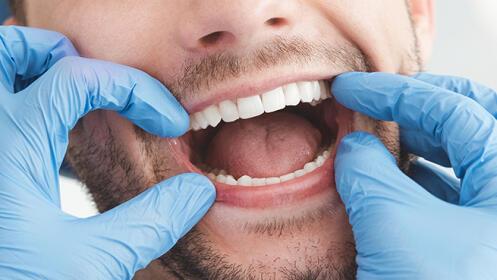 Férula de descarga Michigan + Limpieza dental y pulido + Revisión y diagnóstico