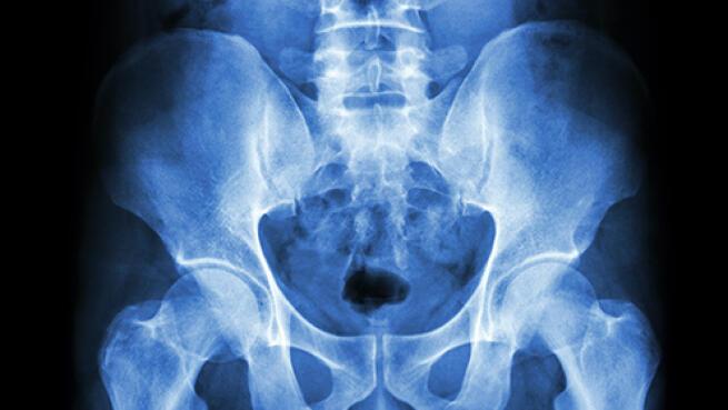 Prueba médica: Densitometría ósea