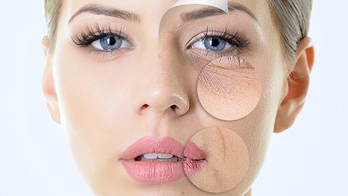 5 sesiones de radiofrecuencia facial